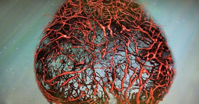 mô hình mạch máu não