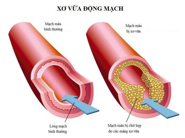 xơ vữa động mạch medihome